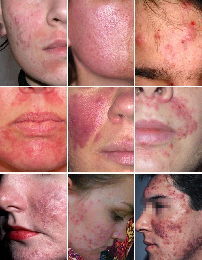 Сперма на обличі фото жінки 14 фотография