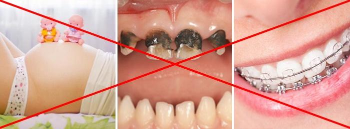 Отбелить зубы в домашних условия перекись