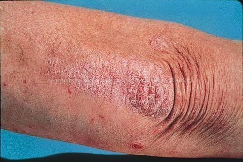 Суха шкіра на ліктях